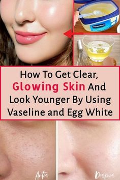 To Get Clear, Glowing Skin And Look Younger By Using Vaseline and Egg White . To Get Clear, Glowing Skin And Look Younger By Using Vaseline and Egg White . Remedies For Glowing Skin, Healthy Skin Tips, Beauty Tips For Face, Beauty Tricks, Beauty Ideas, Face Tips, Face Beauty, Face Wrinkles, Prevent Wrinkles