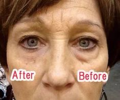 Results in 2 minutes with Instantly Ageless!