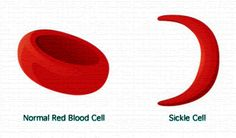 Sickle Cell Anemia & CPB