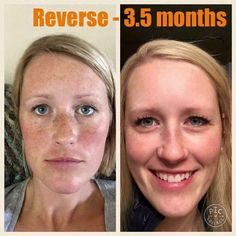 Did you know that freckles are actually sun damage?!  Reverse helps to fade that damage while brightening your complexion at the same time.  acash15.myrandf.biz
