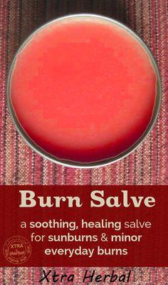 natural burn cream home made