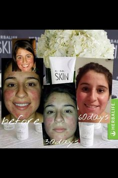 Results from the use of our Herbalife skin care. The results are real. Contact me to try our products or check out my website. www.GoHerbalife.com/360club