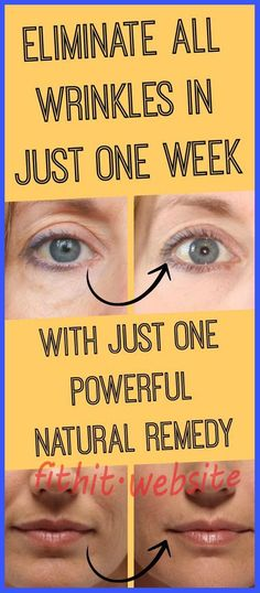 JUST 1 Natural Remedy That Removes All Wrinkles in One Week - Page 3 of 3 - The World of Health
