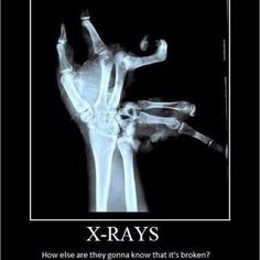 X-rays. Just to be sure...