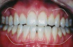 How To Heal Your Gums & Cavities by Robert von Sarbacher