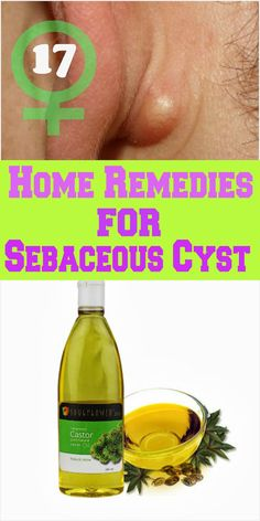 17 Home Remedies for Sebaceous Cyst natural health tips, natural health remedies