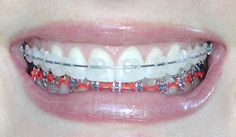 White and Orange Braces