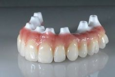 You can replace your removable dentures with non-moveable #DentalImplants retained fixed dentures so they won't move or slip. They look and feel 100% natural and are incredibly beautiful. Ask your #Dentist about them today! Google+