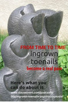Stop getting ingrown toenails and listen to this: http://www.docweinert.com/podcasts/004-ingrown-toenails-onychocryptosis/