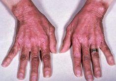Niacin Deficiency