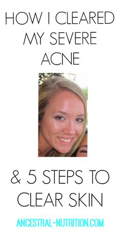 How I Cleared My Severe Acne & 5 Ways To Clear Skin