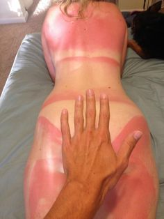15 Fucked Up Sunburns That Will Make You Fear the Summer!