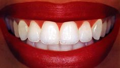 Never buy white strips again! Dip a Q-tip in hydrogen peroxide (the key ingredient in whitestrips) and apply to surface of teeth for 30 sec before brushing teeth once a day for a few days.