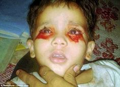 A toddler who cries tears of blood due to a mystery condition has baffled medics and terrified her parents. Blue Streaks, Doctor In, Daily Photo, Crying, Latest Trends, Mystery, Blood, Conditioner, Medical