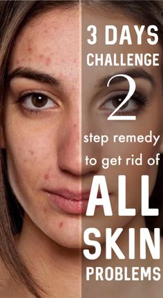 Remove DARK SPOTS/ACNE MARKS/PIMPLE MARKS/BLACK SPOTS Permanently – Get 100% Spotless Skin In 3 Days #skincare #skincareroutine #skincaretips #selfcaretips #darkspots #clearskin #pimples #PimplesOnButtocks Pimple Marks, Acne Marks, Pimples On Buttocks, Dark Spots On Face, Black Spot, Skin Problems, Beauty Hacks, Beauty Tips, Clear Skin