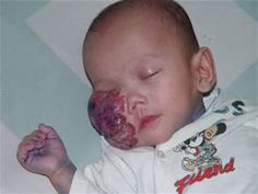 cancer tumor photos - - Yahoo Image Search Results