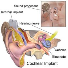 A cochlear implant is an electronic medical device that replaces the function of the damaged inner ear. Cochlear implants bypass the damaged hair cells Speech Language Pathology, Speech And Language, Sign Language, Hearing Implants, Cochlear Implants, Hearing Impairment, Ear Sound, Deaf Culture, Hearing Aids