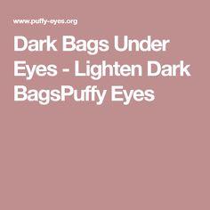 Dark Bags Under Eyes - Lighten Dark BagsPuffy Eyes