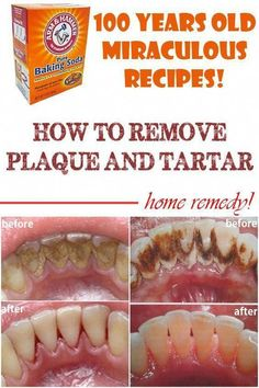 Home remedies to remove plaque and tartar-Tartar can manifest in different ways: bad breath, chronical swollen gums, receding gums or tooth decay and can make your teeth look very unattractive. In other words, it is vital to take care of your teeth in a proper way. Apart the already known methods, you should also try one of the following remedies that have proven to be quite effective.Grandparents have the best remedies to transmit... #OralHealth #IsOralHealthCare #gumremoval Home remedies…