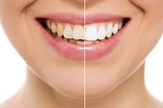 If you're thinking that a brighter smile can have a positive impact for you, contact Smyrna Dental and Implant Center.   #BrighterSmile #TeethWhitening