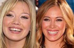 She went thru the horse-teeth faze & then had them re-done. Why nice teeth are SO important to how we look. A nice set of teeth can make or break a face, truly! Celebrity Teeth, Celebrity News, Hilary Duff Makeup, Famous Celebrities, Celebs, Perfect Teeth, Thyroid Health, Cosmetic Dentistry, Dental Implants