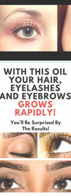 With This Oil Your Hair, Eyelashes And Eyebrows Grows Rapidly!!