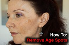 Beverly Hills MD Advice: How To Get Rid Of Dark Spots
