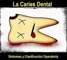 La Caries Dental: Síntomas y Clasificación Operatoria | OVI Dental