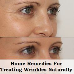 20 Home Remedies for Treating Wrinkles Naturally at Home | Health Clue