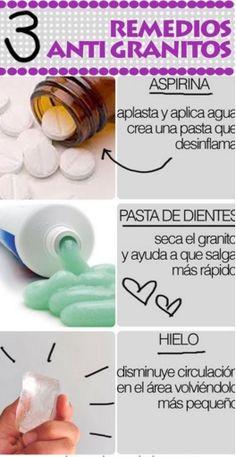 Remedios caseros para el acné. .