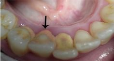 Cómo eliminar El calculo dental o Sarro en Los Dientes con remedios Caseros