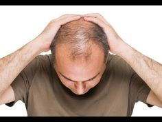 Hair Transplant cost per graft in Dubai, UAE. Know more about how much does a hair transplant cost according to the treatments in Dubai Home Remedies For Baldness, Hair Loss Remedies, Hair Transplant Women, Best Hair Transplant, Barba Grande, Excessive Hair Loss, Best Hair Loss Treatment, Hair Loss Treatment, Grow Hair