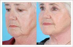 Female Aging Face Patient 1- 3/4 view