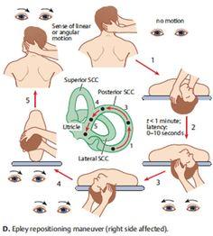 Benign Paroxysmal Positional Vertigo (BPPV) — Oliver Adunka, MD
