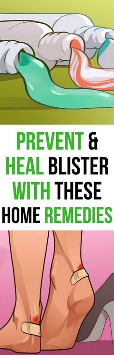 Blisters are worsened by moisture and friction, so keeping your feet bone dry can help prevent them from forming. Slide the gel variety around the sides and tops of clean, dry feet before slipping … Healthy Lifestyle Motivation, Healthy Lifestyle Tips, Health Motivation, Healthy Tips, Healthy Lunches, Healthy Options, Stay Healthy, Healthy Food, Healthy Recipes