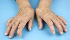 artrite reumatoide 016 400x800