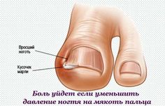 Как вылечить вросший ноготь на ноге средствами народной медицины
