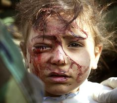politics-war: A wounded Iraqi girl is treated by U.S. marines in central Iraq, on March 29, 2003. The four-year old girl, blood streaming from an eye wound, was screaming for her dead mother, while her father, shot in a leg, begged to be freed from the plastic wrist cuffs slapped on him by U.S. marines, so he could hug his other terrified daughter.