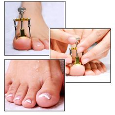 Beauty & Health Foot Care Tool 2019 New 6 Pairs Ingrown Toe Nail Correction Wire Fixer Pedicure Paronychia Recover Toenails Corrector Foot Care Tool Complete Range Of Articles