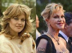 Look at the Melanie Griffith Plastic Surgery : Melanie Griffith Plastic Surgery Before and After. Melanie griffith plastic surgery before and after. Bad Celebrity Plastic Surgery, Botched Plastic Surgery, Bad Plastic Surgeries, Plastic Surgery Gone Wrong, Celebrities Before And After, Celebrities Then And Now, Melanie Griffith Plastic Surgery, Worst Celebrities, New Year's Makeup