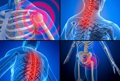 Tags:.Fibrosis, fibromyalgia. Stage 1 You started experiencing pain and fatigue more than before, you're not sure what is going on but you hurt and you are tired. You can hold a job, you can make i…