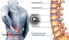 Chiropractic care can help you manage chronic pain caused by a neck or back pain, such as a herniated disc. Get treatment done from Dr_SamBoyd . Low Back Pain Relief, Severe Back Pain, Upper Back Pain, Neck And Back Pain, Hip Flexor Pain, Back Pain Symptoms, Pregnancy Back Pain, Sciatica Pain Relief, Back Pain Remedies