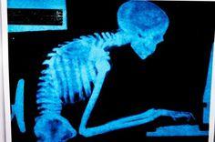 9月1日のNHKあさイチで放送された猫背のセルフチェック法と、改善エクササイズのやり方をご紹介します! タオルを使って首・肩甲骨・骨盤を鍛える体操です。 肩こりや腰痛、頭痛、首のこり、手足のしびれなどの改善にも効果がある体操です。