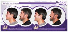 Missing Teeth, Medical Information, Dental Health, Anatomy, Names, Study, Reading, Blog, Oral Health