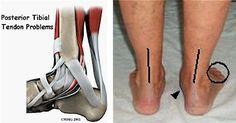 Posterior tibial tendonitis!
