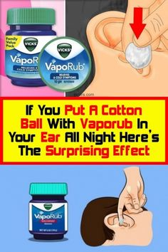 The surprising effect of putting one cotton ball on your ear all night with vapor Pain In The Ear, Heal Bruises, Guzzi V7, Cold Symptoms, Improve Blood Circulation, Vicks Vaporub, How To Fall Asleep, Persona, Night