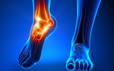 Words of Wisdom for Marathon Foot Care – www.runningshoesg… – Training for a marathon is a tough business for your feet. Peripheral Neuropathy, Nerve Problems, Ankle Mobility, Ankle Flexibility, Tendinitis, Ankle Pain, Heel Pain, Diabetic Neuropathy, Body Fitness