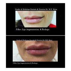 Filler lips enhancement with Ialuronic Acid . Natural results and shape . To achieve this result it s really importante utilize soft Filler