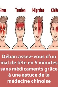 Get rid of a headache in 5 minutes without drugs thanks to a tip of Chinese medicine Migraine, Yoga Fitness, Heart Attack Symptoms, Calendula Benefits, Stomach Ulcers, Burn Out, Coconut Health Benefits, Natural Cures, Drugs
