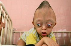 XuanMinhConehead Asias Top 10 Most Unique Deformities picture.  This deformity is said to likely be the cause of exposure to Agent Orange used by American forces during the Vietnam War.  He will probably have to live out his life without anything to help or cure his condition.  He is five years old in this photo.